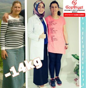 Arzu Hanım -14 KG (Kilo Verme)