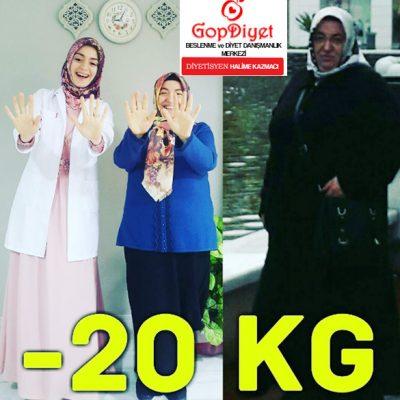 Sevim Hanım -20 KG (Kilo Verme)
