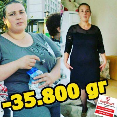 Sibel Hanım -35 KG (Kilo Verme)