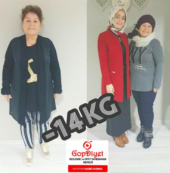 Ayşe Hanım -14 KG (Kilo Verme)