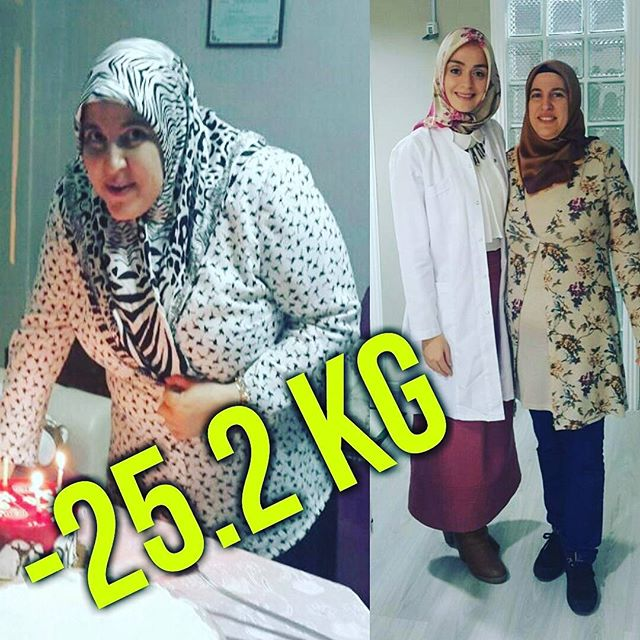 Berrin Hanım -25 KG (Kilo Verme)