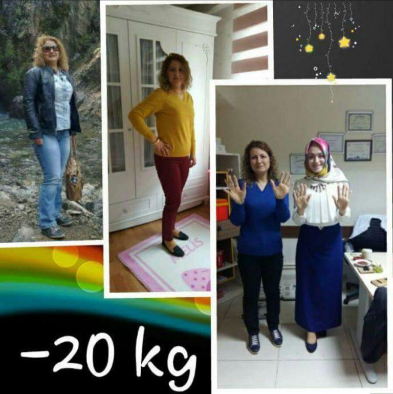 Emine Hanım -20 KG (Kilo Verme)
