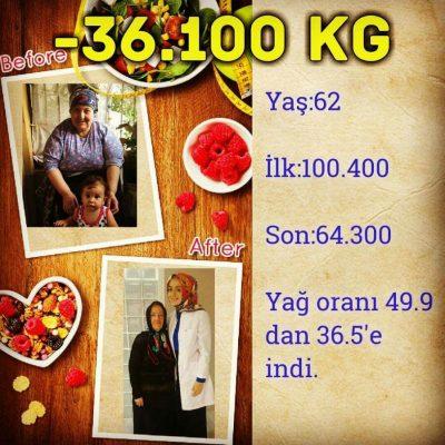 Gülcan Hanım -36 KG (Kilo Verme)
